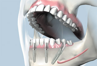 Prosthetic Restorations On Implants